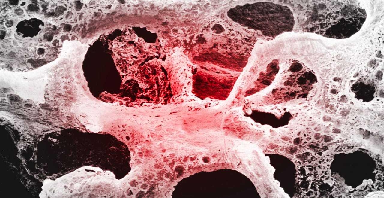 Amelmedical – Magnetoterapia - Osteoporosi